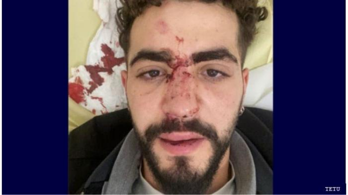 The victim, who identified himself as Mohamed, after being attacked by an Uber driver